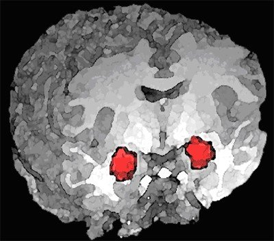 Brain with Amygdala Highlighted